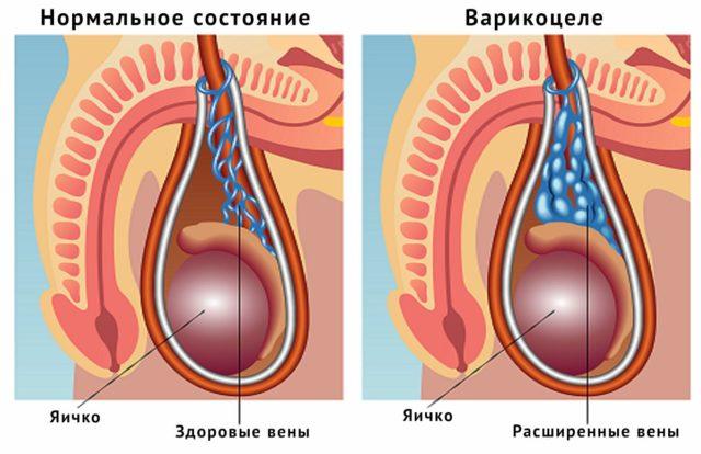 Как варикоцеле может влиять на потенцию?