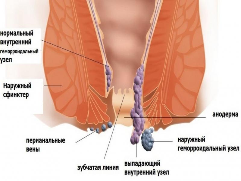 Как вылечить и укрепить геморроидальные узлы