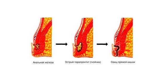 Как вылечить парапроктит без операции