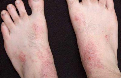 Какие особенности проявления псориаза на ногах? Фото заболевания, причины, симптомы, а так же варианты профилактики и лечения ЛечениеБолезней.com