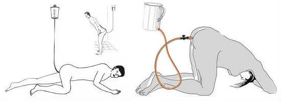 Касторовое масло при запорах: как пить, дозировка и инструкция по применению