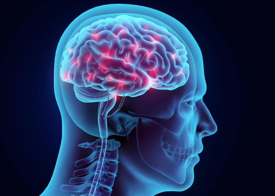 Код эпилепсии в МКБ 10 — как обозначена болезнь в классификаторе