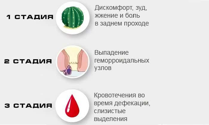 Кровит геморрой при беременности? Эффективно лечим неприятный симптом