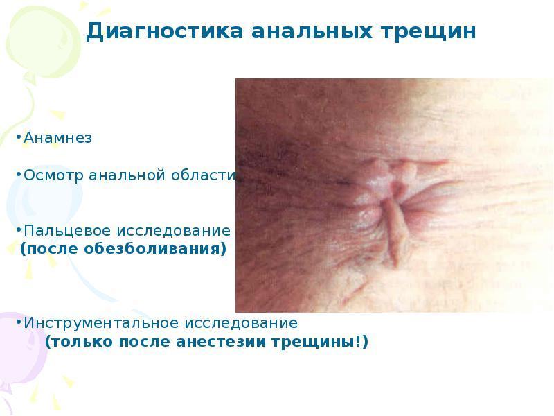 Лечение анальных трещин при геморрое
