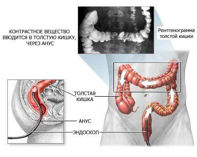 Лечение дивертикулы сигмовидной кишки