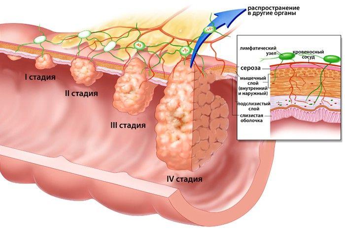 Лечение и диагностика рака толстой кишки — его первые симптомы