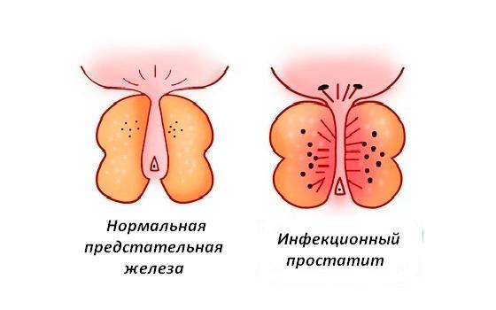 Инфекционный простатит форум ограничения при простатитом