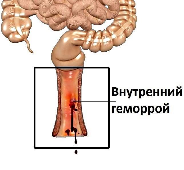 Лечение внутреннего геморроя в домашних условиях. Только проверенные методы