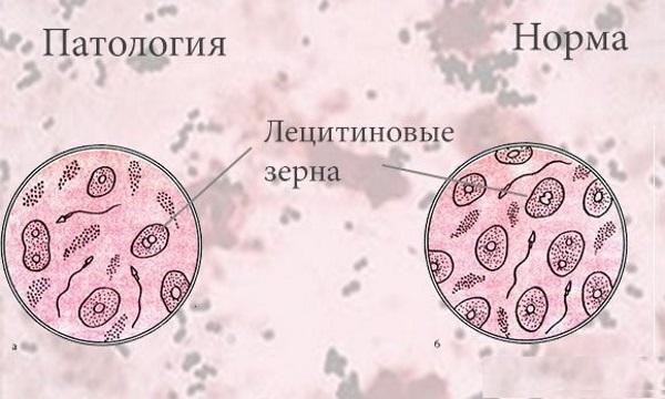 Лецитиновые зерна в секрете простаты: что это такое, нормальное количество, причины уменьшения