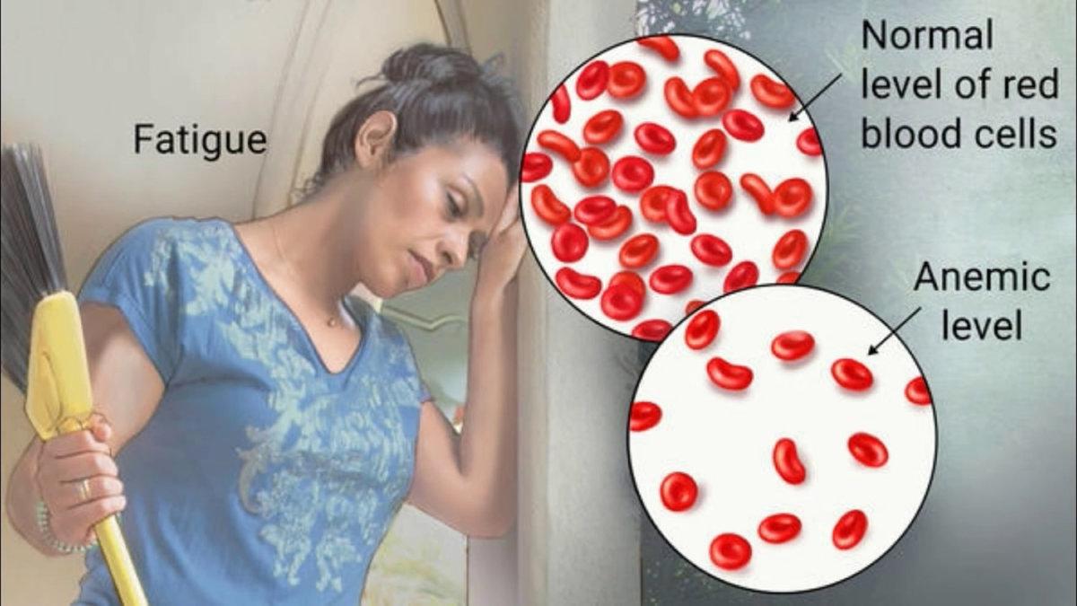 Лекарства для повышения гемоглобина в крови — как выбрать