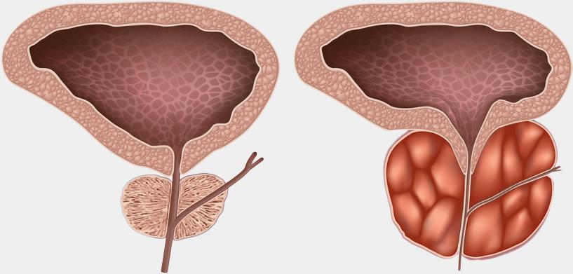 Лекарства при простатите: чем лечить воспаление простаты у мужчин