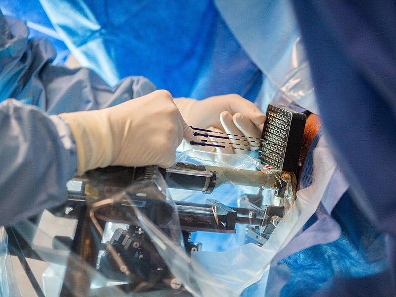 Лучевая терапия при раке простаты: виды процедуры, показания, последствия