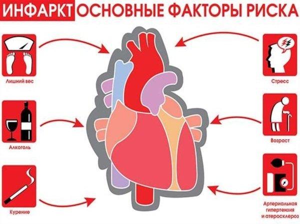 Лучшие способы профилактики инфаркта миокарда для мужчин и женщин
