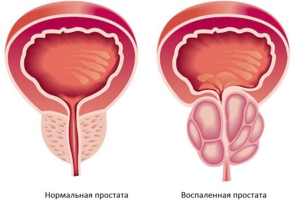 Мастурбация и простатит: мнение медиков на онанизм при воспалении простаты