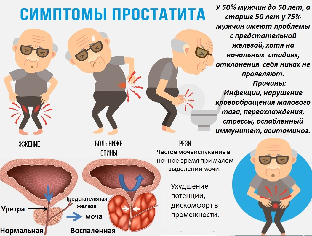 протекания простатита