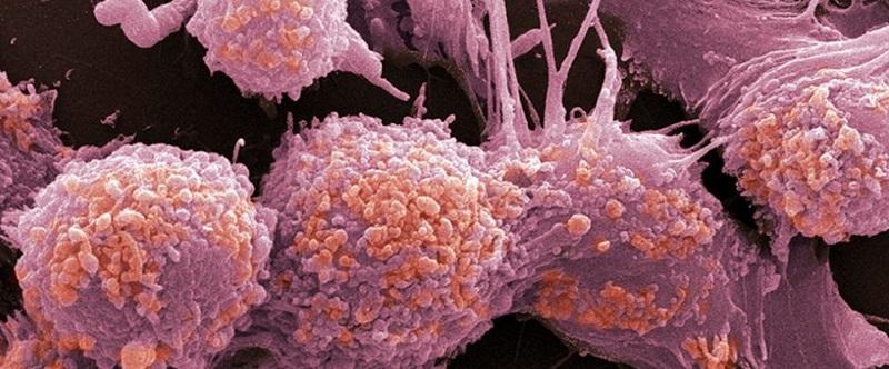 Метастазы в костях и органах при раке простаты: диагностика, лечение, прогноз