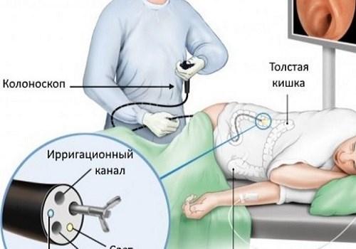Методы обезболивания при проведении колоноскопии