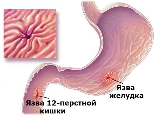 Можно ли пить кефир при вздутии живота и чем он полезен