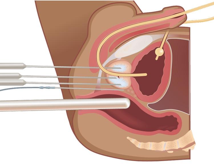 Можно ли вылечить аденому простаты без операции: доступные методы
