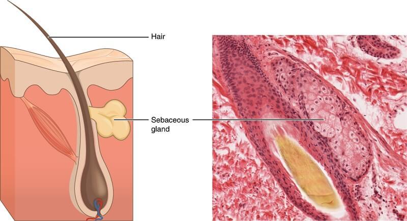 Насколько опасны жировики на члене, в каких случаях их нужно лечить
