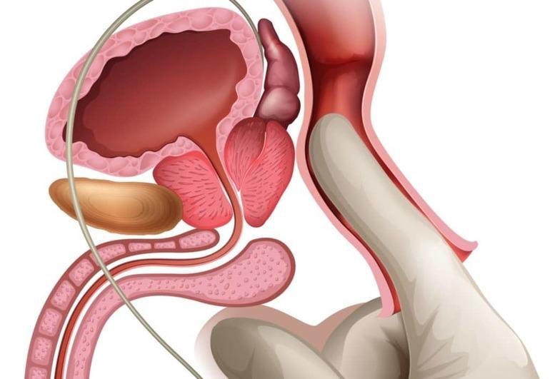 Обострение хронического простатита: причины, признаки, лечение
