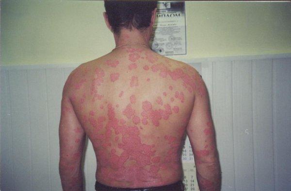 Общее описание вульгарного псориаза: фото, симптоматика, формы болезни, способы лечения ЛечениеБолезней.com
