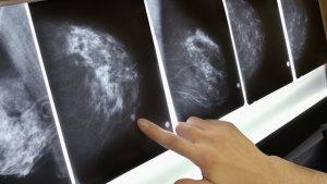 Онкологии грудной железы: симптомы и признаки, факторы развития, методы диагностики и лечения