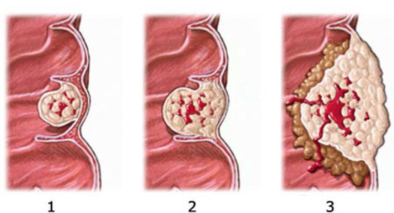 Онкомаркер на рак прямой кишки — как проводится процедура?