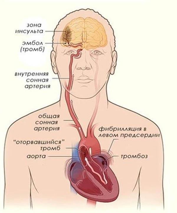 Опасность для жизни мерцательной и синусовой аритмии