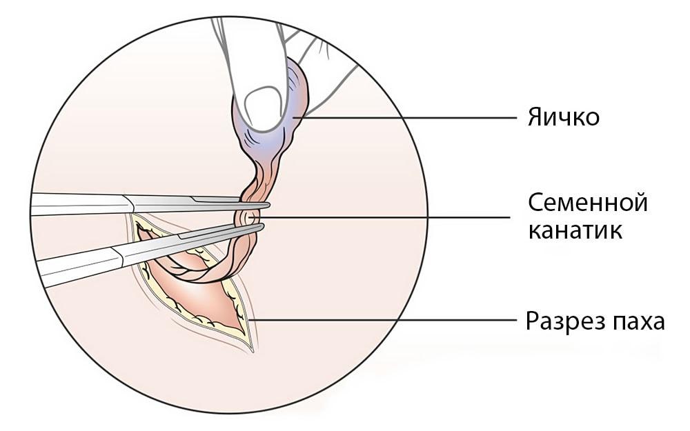 Операция по удалению яичек при раке предстательной железы: особенности проведения, реабилитация