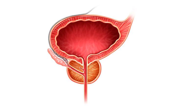 Опухоль простаты: уплотнения, узлы, отеки