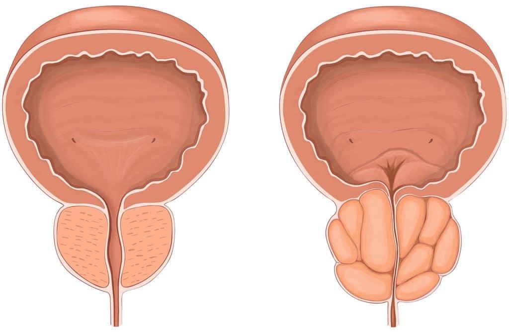 Что такое аденома простатит лист лещины от простатита отзывы