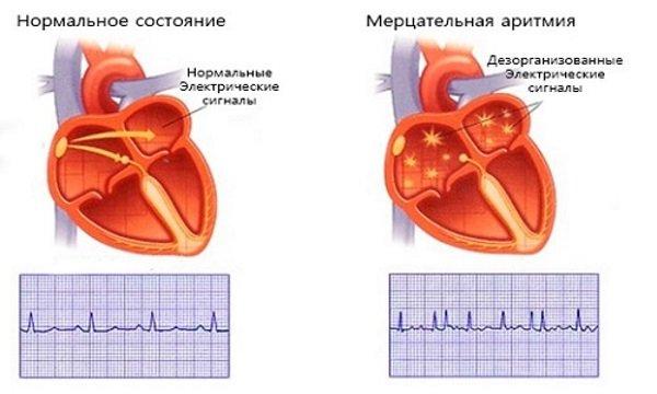 Основные осложнения инфаркта миокарда и способы профилактики