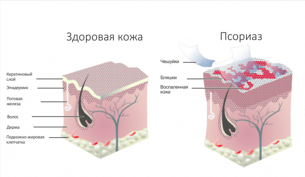 Передается ли псориаз: заразен или нет? Наследственное или приобретенное заболевание? ЛечениеБолезней.com