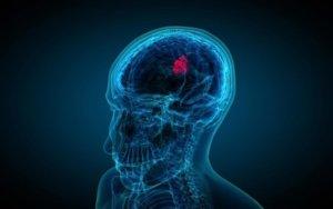 Первые признаки опухоли головного мозга у пациентов различной возрастной категории