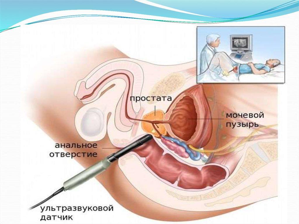 Последствия при проведении биопсии простаты