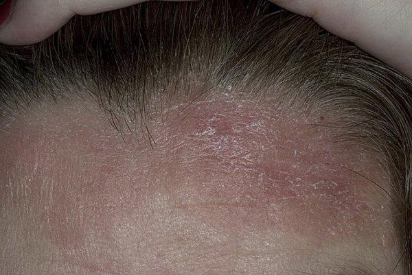Правила и способы лечения себорейного псориаза. ЛечениеБолезней.com