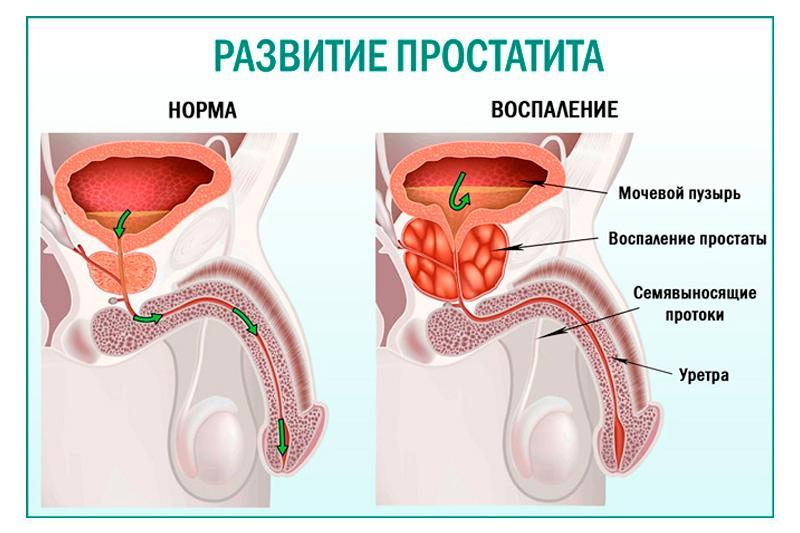 Препараты для профилактики простатита: эффективные антибиотики и БАДы