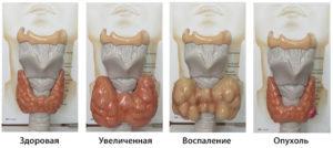 Причины повышения АТ-ТПО. Значение анализа на антитела микросомальной тиреопероксидазе