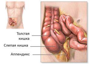Признаки и симптомы аппендицита у женщин