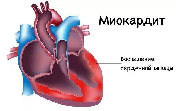 Признаки постинфарктного кардиосклероза, методы лечения и меры профилактики
