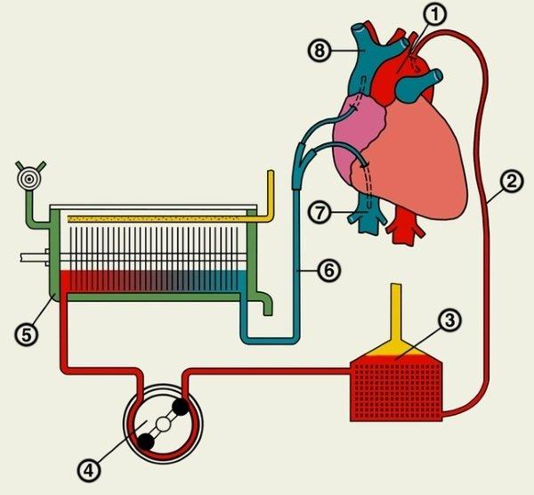 Процесс шунтирования сердца после инфаркта: схема проведения операции
