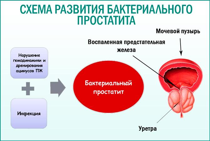 Простатит от инфекцией диклофенак свечи против простатита