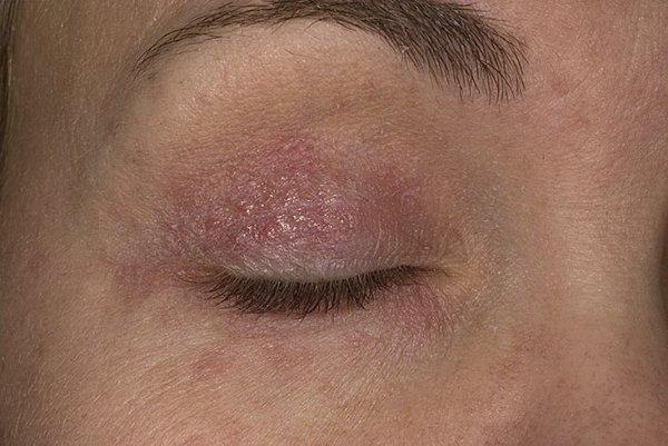 Проявление псориаза на глазах! Фото век, чем опасно заболевание? Как правильно лечить? ЛечениеБолезней.com