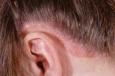 Проявление псориаза на коже головы ЛечениеБолезней.com