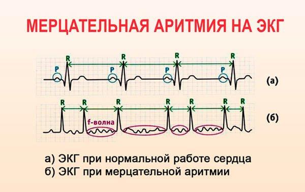 Расшифровка и диагностика мерцательной аритмии с помощью ЭКГ