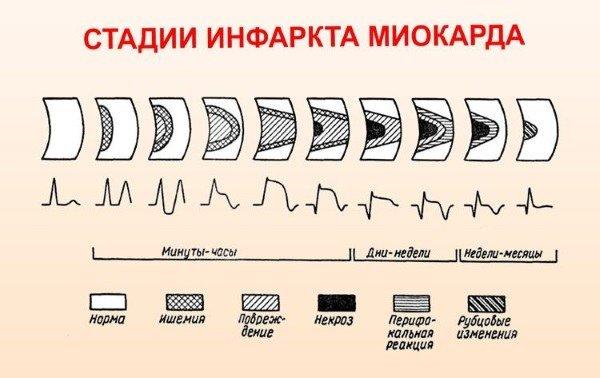 Развитие и классификация различных видов инфаркта миокарда