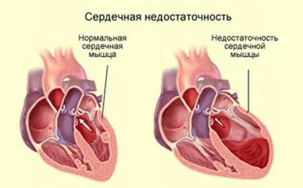 Рецидивирующий инфаркт миокарда: симптомы, возможные последствия и методы лечения