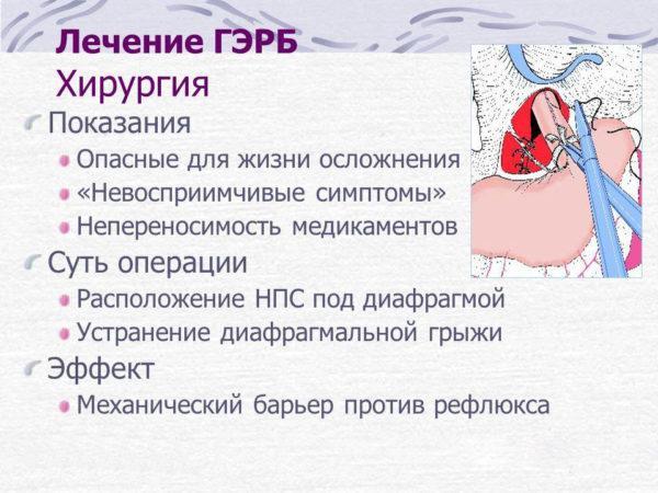 Рефлюксная болезнь желудка: симптомы, лечение