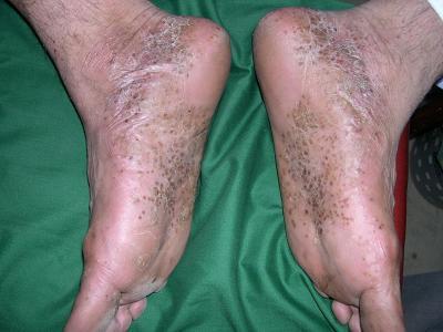 Самая тяжелая форма болезни — пустулезный псориаз: фото, описание, симптомы и методы лечения ЛечениеБолезней.com